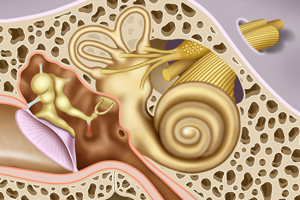 Cochlear Nerve